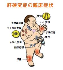 肝硬変症の臨床症状の画像