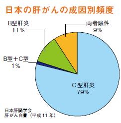 日本の肝がんの成因別頻度の画像